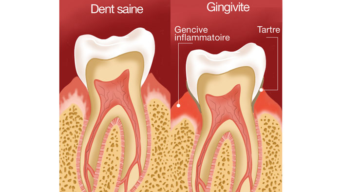 Dent saine vs gingivite